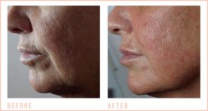 Before-and-after-Jowl-Lift-1