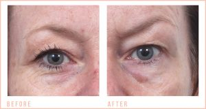 Eyebrow-Lift-before-&-after