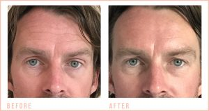 Male-Non-Surgical-Facial-Toning-Before-and-After