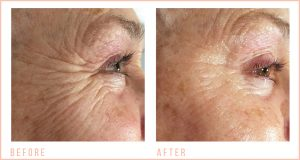before-and-after-Eye-Revive
