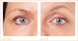befre-and-after-Eye-Revive-2
